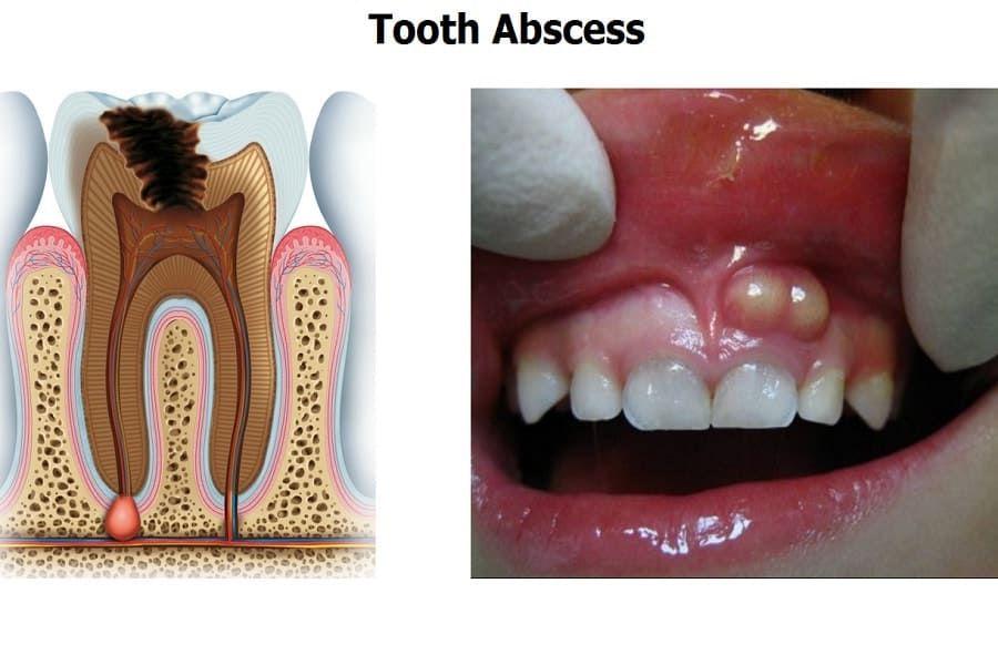 Вскрытие абсцесса, флегмоны челюстно-лицевой области — описание ... | 600x900