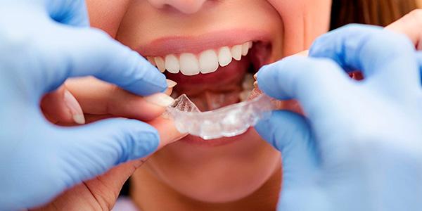 Исправление прикуса у детей в Люблино, стоимость исправления прикуса зубов у детей