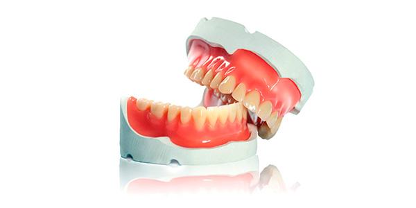 Процесс изготовления зубных протезов