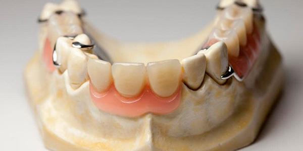 Временное протезирование зубов - в стоматологии Илатан