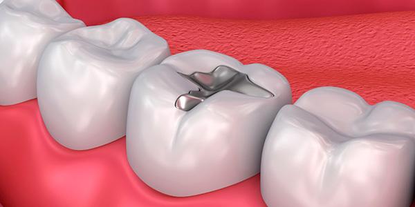Реставрация жевательных зубов, низкие цены на реставрацию жевательных зубов в стоматологии «Добрые руки»