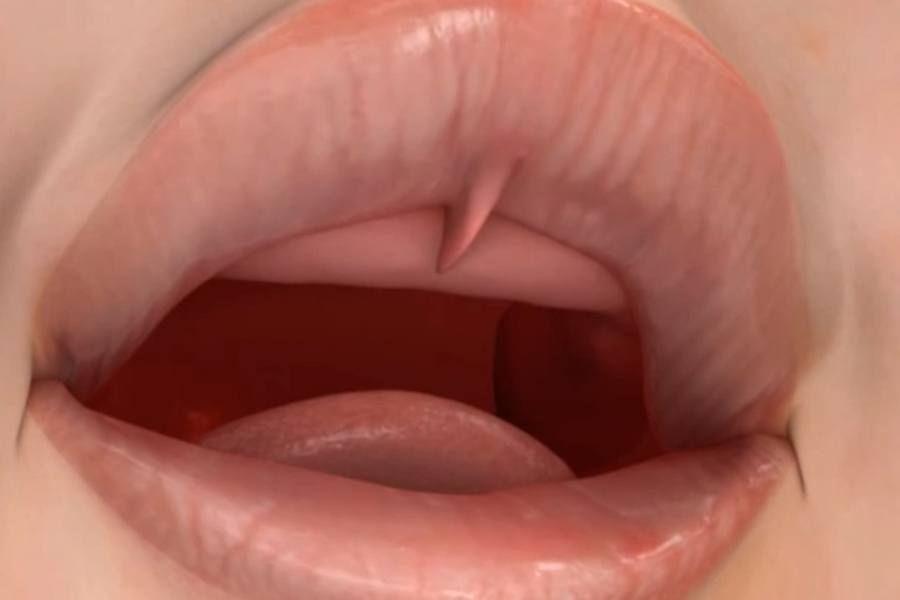 Пластика уздечки нижней губы лазер